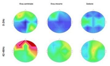 Normy EEG Biofeedback